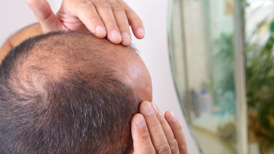 Hair loss may be a coronavirus symptom, study finds