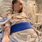 A 25-year-old who had to get a double lung transplant due to COVID-19 said his lungs look like 'chewed up pieces of bubblegum'